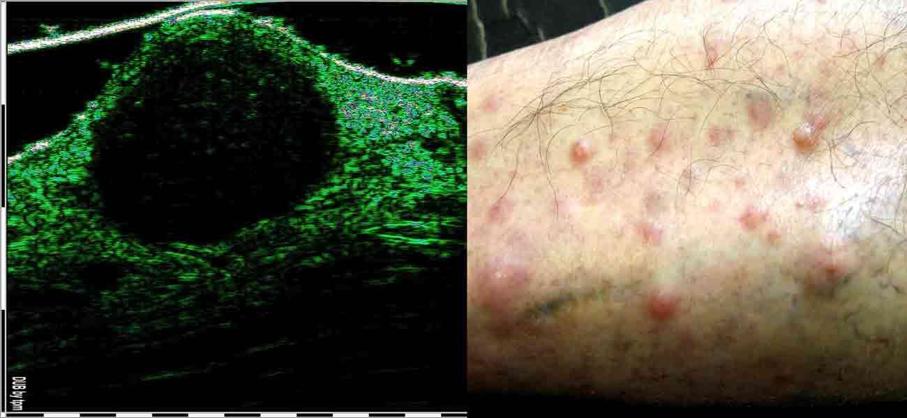 УЗИ обследование кожи дерматовенерологом